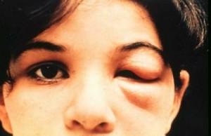 Симптомы болезни Шагаса