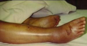 Серьезное поражение после укола скорпены
