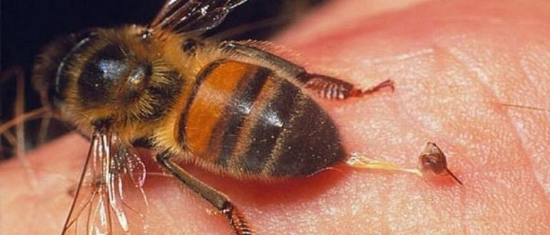 укусила пчела_1